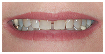 Diastema-before-close-up.jpg