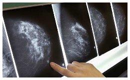 mammograma.jpg