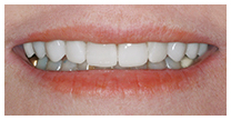 Diastema-after-close-up.jpg